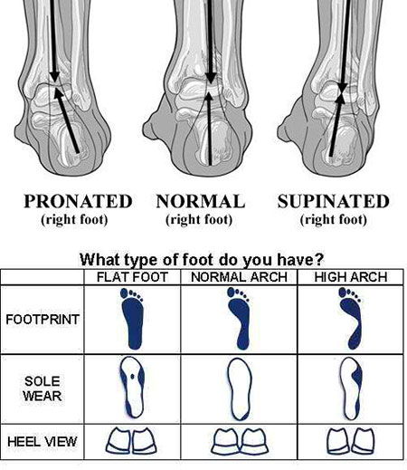 Foot Type Chart - How to Choose Tennis Shoes - Athlete Audit